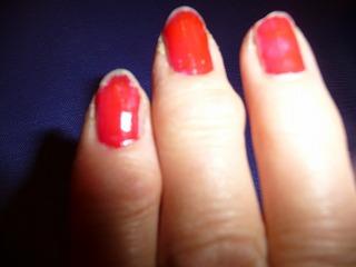 ヘバーデン結節の指